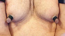 Nipples